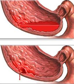 Кровотечение жкт лечение