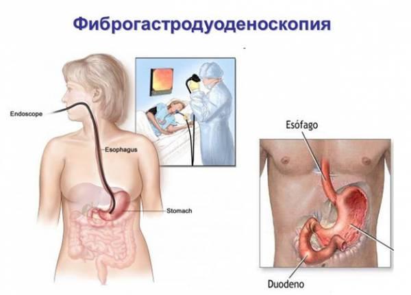 ФГДС: что это такое в медицине