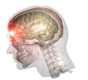 Ушиб головного мозга: виды, симптомы, лечение и последствия