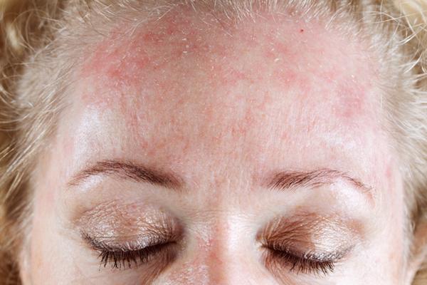 Холодовая аллергия – симптомы и лечение