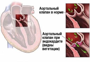 Инфекционный эндокардит клапана сердца