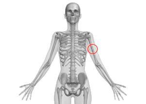Перелом плечевой кости - причины, симптомы, диагностика и лечение