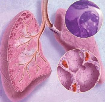 Саркоидоз легких прогноз для жизни лечение признаки
