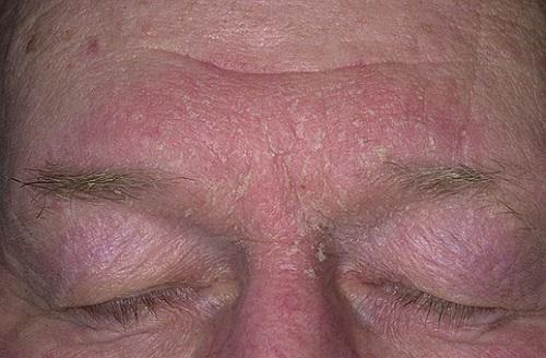 Себорейный дерматит лечение - BadAcne