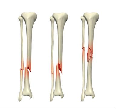 Перелом голени Классификация Симптомы Первая помощь Лечение Реабилитация