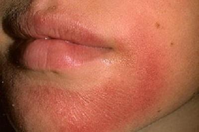Атопический дерматит. Причины, симптомы и лечение у детей и взрослых