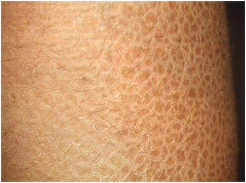 Вульгарный ихтиоз кожи