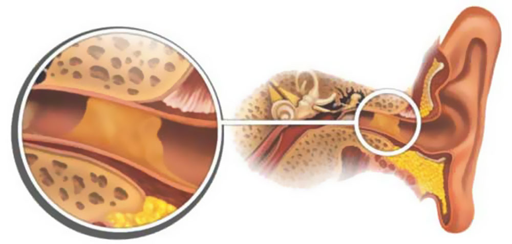 Серная пробка в ухе у взрослых и детей: причины и симптомы. Как промыть ухо в домашних условиях и избавиться от ушной пробки самостоятельно? Лекарства, средства и препараты от серной пробки в ушах