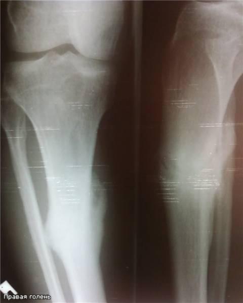 Саркома бедренной кости симптомы фото причины стадии диагностика лечение и прогноз