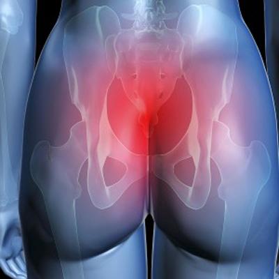 Почему болит копчик у женщин, боль в копчике у женщин - причины и лечение