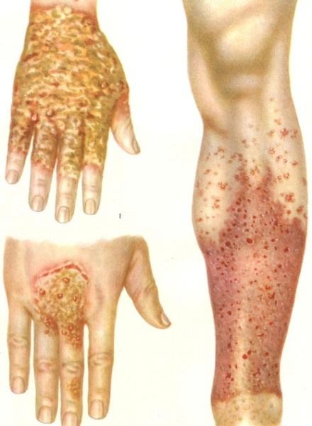 Экзема на руках: фото, причины, симптомы и лечение