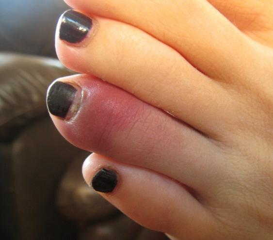При первых симптомах перелома пальца на ноге необходимо незамедлительное лечение