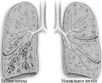 Что такое бронхоэктазы в лёгких и как их лечить