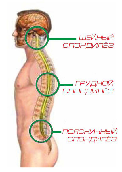 Спондилёз позвоночника - cимптомы и лечение. Журнал Медикал