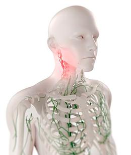 Препараты для лечения воспаления в лимфатических узлах и устранения боли
