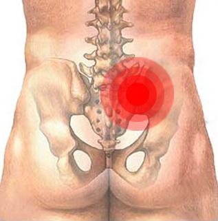 Сакроилеит лечение инфекционной неинфекционной реактивной и ревматической природы