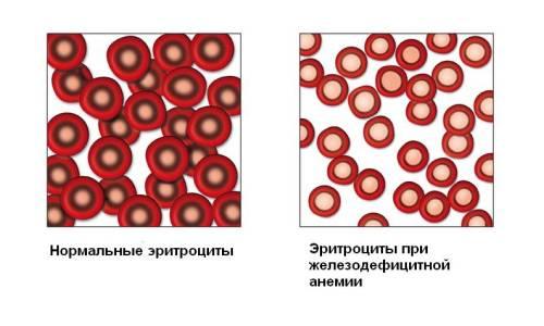 При железодефицитной анемии применяют
