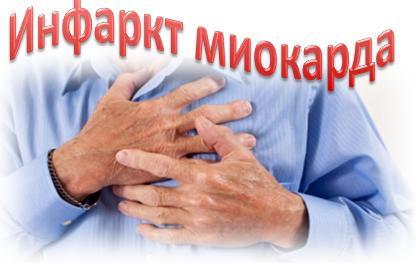 Инфаркт миокарда: причины, признаки, симптомы, лечение