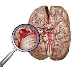 Аневризма сосудов головного мозга: симптомы, последствия после операции, что это такое, лечение