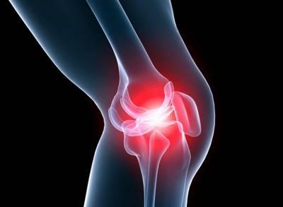 Артроз коленного сустава - симптомы, профилактика и лечение