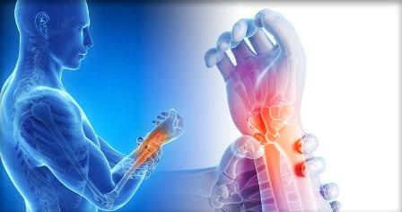 Болит сустав запястья правой руки чем лечить
