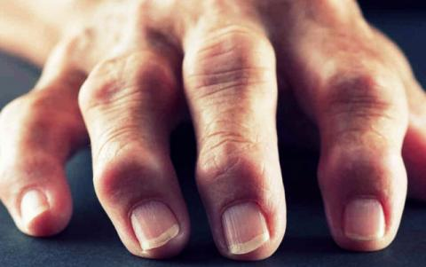 Заболели суставы пальцев рук