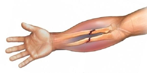 Перелом локтевой кости