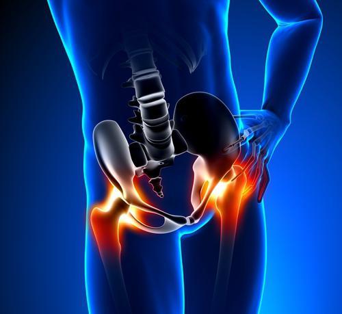 Сильная боль в тазобедренном суставе при ходьбе