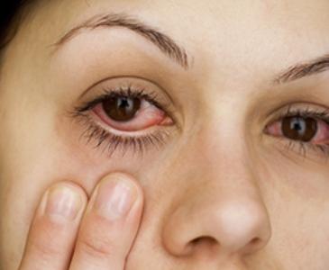 Красные глаза лечение