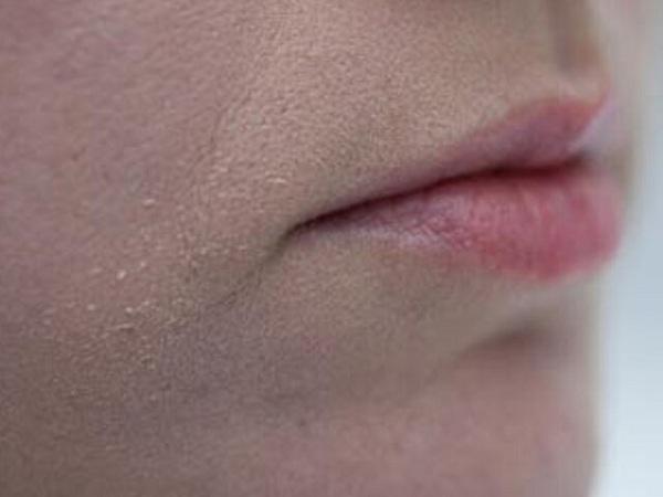Как избавиться от шелушения на лице