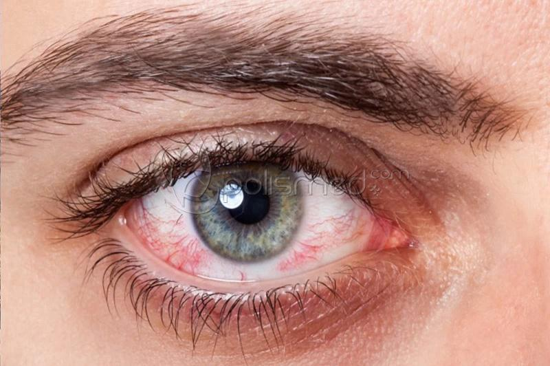 Сухой глаз. Симптомы синдрома сухого глаза. Причины сухости в глазах, диагностика и лечение патологии. Какие капли капать при сухом глазе?