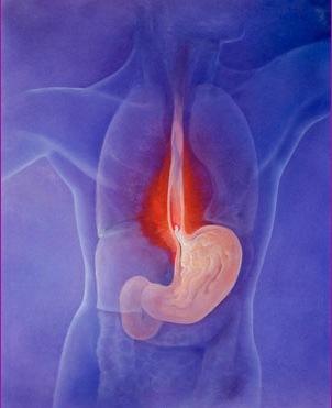 Выброс кислоты из желудка в пищевод — Заболевание желудка