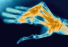 Развернутая стадия ревматоидного артрита