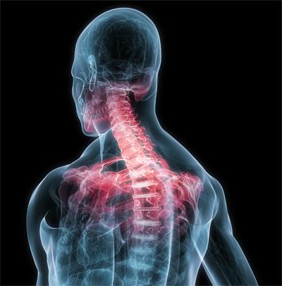 Головная боль напряжения симптомы и лечение