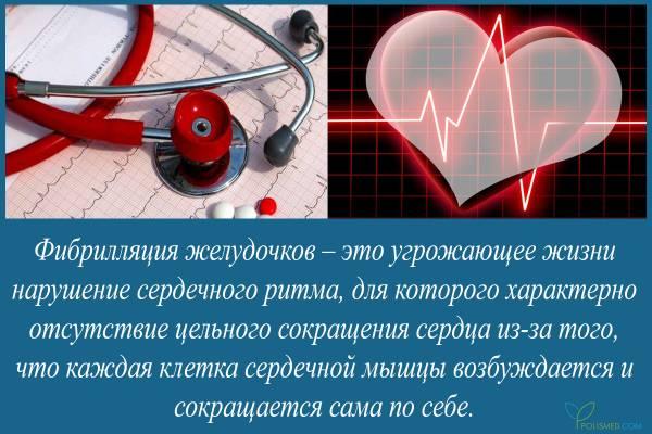 Фибрилляция желудочков при инфаркте