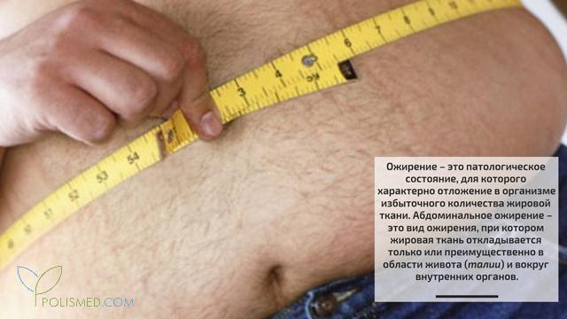 Абдоминальное ожирение у мужчин лечение