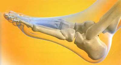 Боль в стопе почему появляется Симптомы диагностика лечение