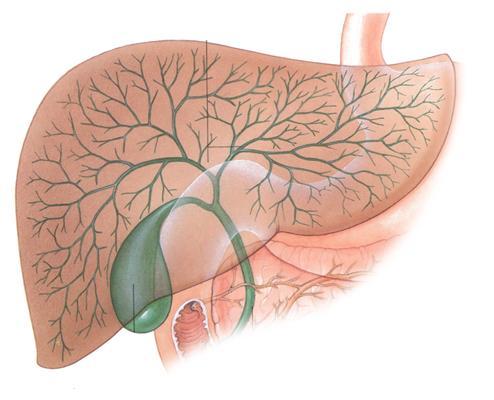 Калькулез желчного пузыря лечение