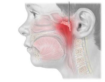 Аденоиды у взрослых - симптомы, причины, диагностика, лечение