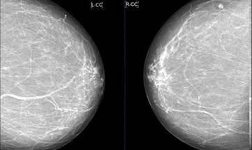 Маммография как делается фото