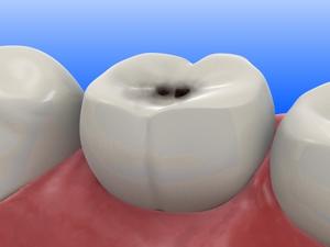 Кариес зубов, причины, профилактика и лечение кариеса. Заболевания. Лечение заболеваний народными средствами. Уход за здоровьем