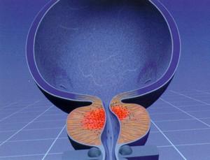 Как и чем вылечить аденому простаты (предстательной железы) 1 (2) и 3 степени у мужчин