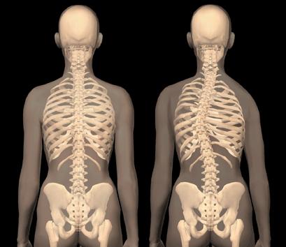 Сколиоз позвоночника: причины, классификация, диагностика и лечение