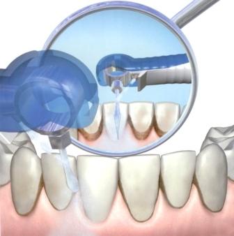 Как почистить зубной камень в домашних условиях рекомендации экспертов