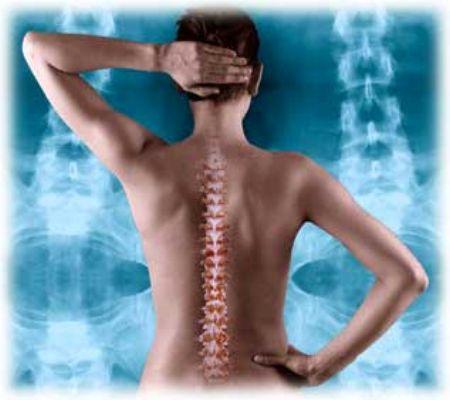 Остеохондроз шейного отдела позвоночника Все виды симптомов и способы лечения