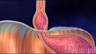 Грыжа пищевода (лечение без операции)