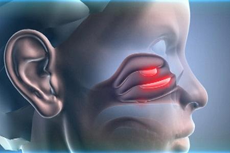 Полипы в носу: лечение, операция по удалению, симптомы и фото