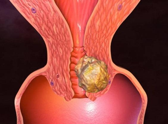 Рак шейки матки лечение: симптомы и признаки рака шейки матки, прогноз и лечение рака шейки матки на разных стадиях