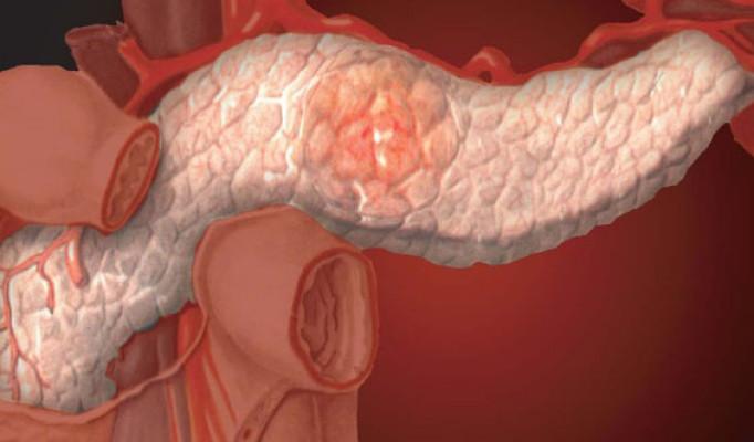 Лечение печени при раке поджелудочной