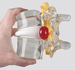 Грыжа позвоночника. Грыжа межпозвоночного диска всех отделов позвоночника. Симптомы, причины, диагностика и эффективное лечение межпозвоночной грыжи.